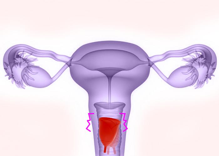 Copa Menstrual Atascada En Tu Vagina Sileu Cup Copas Menstruales Y Accesorios