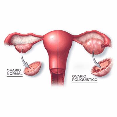 que es un ovario poliquistico