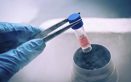 Extracción de células madres