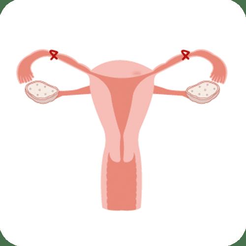 Métodos permanentes: La salpingectomía